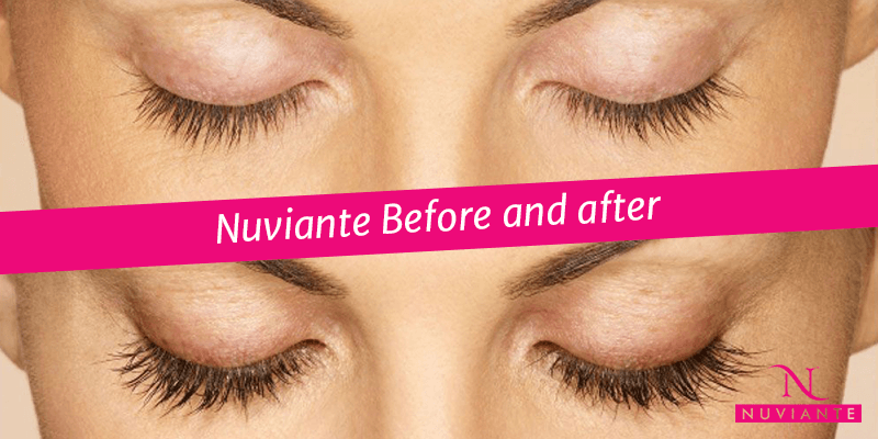 NUVIANTE before and after